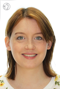 Double jaw surgery is a corrective jaw surgery.