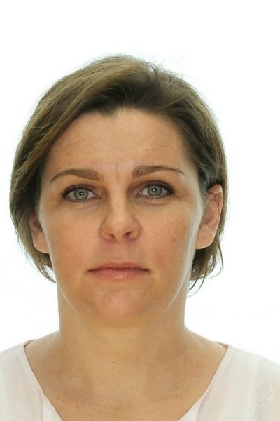 short haired woman after corrective jaw surgery front profile 400