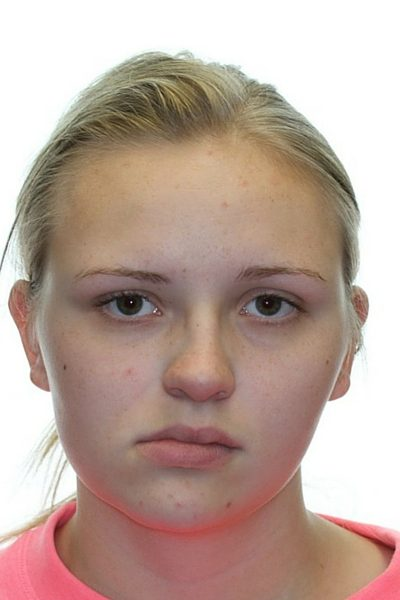 young short blonde hair woman before corrective jaw surgery front